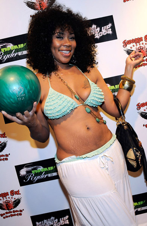 ever fix them stretch marks. 2008-07-22-images-deelishisstretchmakrs.jpg
