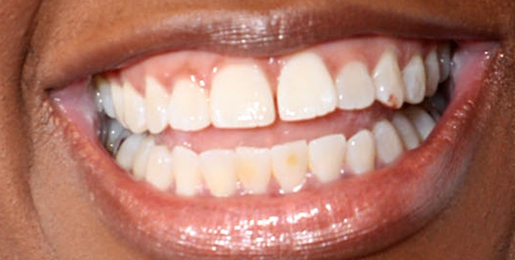 remove braces with photoshop