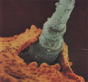 2009-08-17-sperm_egg.jpg