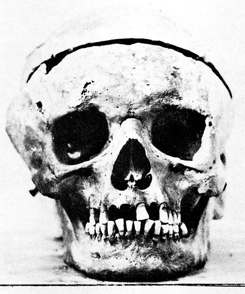 2010-01-18-Beet_Skull.jpg