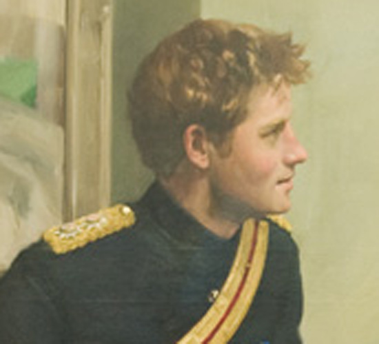 prince william hair before and after. Was William given more hair?