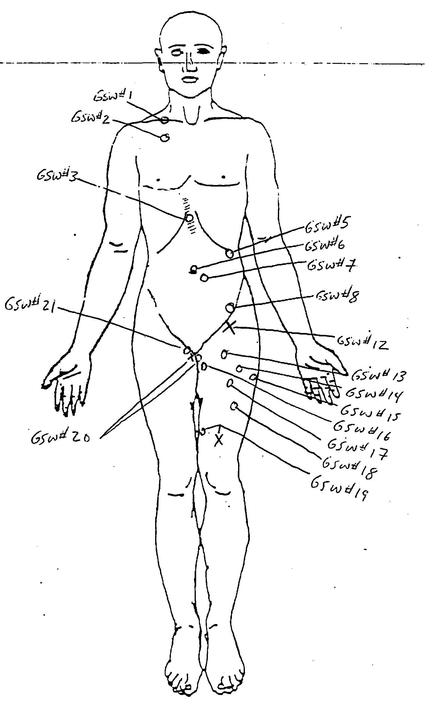 2010-03-13-Autopsy_p11.jpg