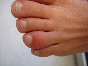 how to tell if your baby toe is broken
