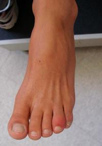 How to treat a swollen pinky toe