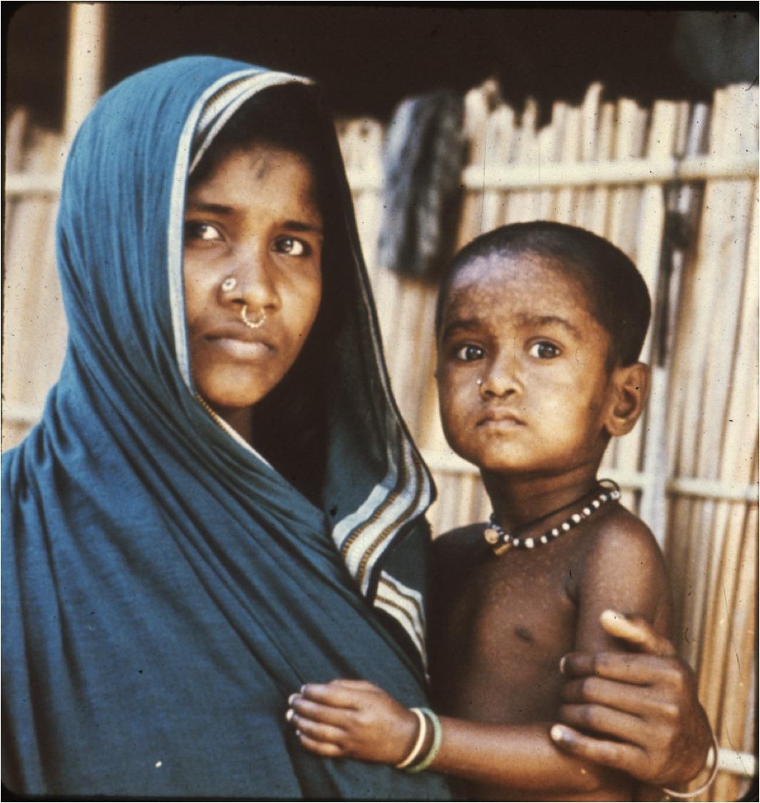 2010-05-18-LastSmallpoxCaseBangladesh1975.jpg