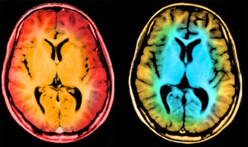 2010-11-29-MRI.jpg
