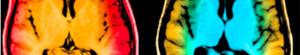 2010-11-29-brain.jpg