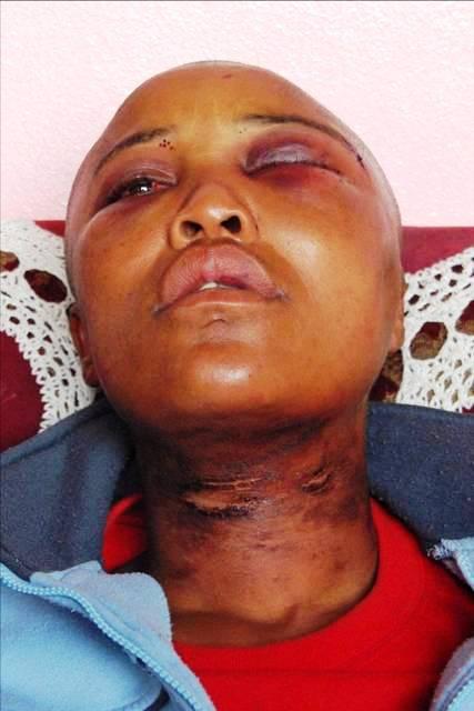 2011-01-11-Corrective_Rape_Victim_Millicent_Gaika_1.jpg
