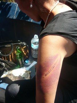 2011-03-18-injury2_march10.jpg