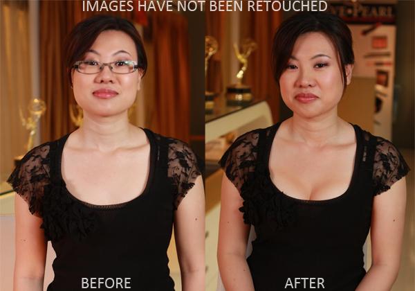 2011-06-14-BreastBeforeAfter.jpg