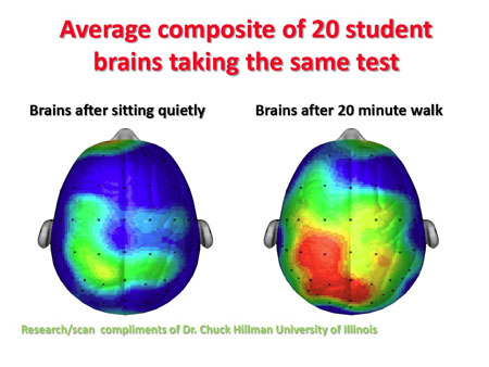 2011-07-11-BrainImages.jpg
