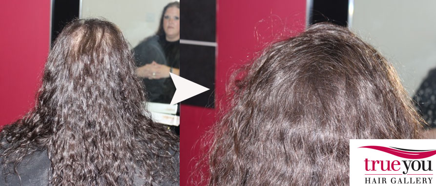 Handling Cancer Hairloss What Are The Best Practical Options