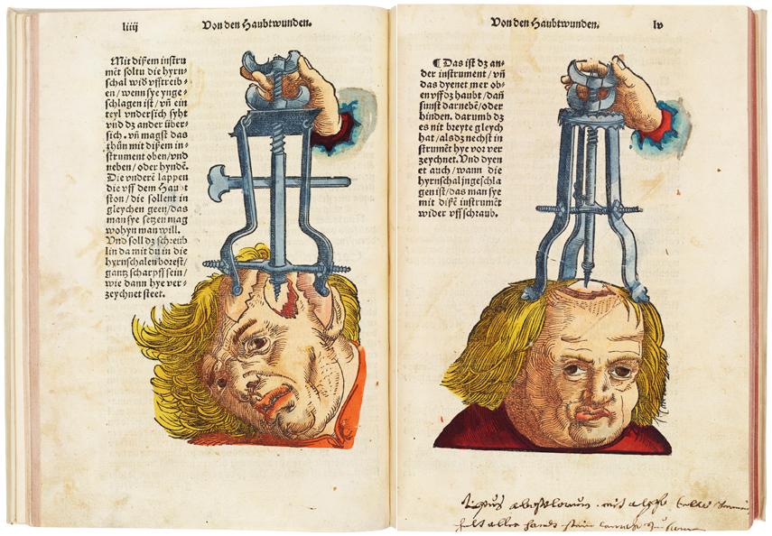 2012-02-01-cranial_composite.jpg