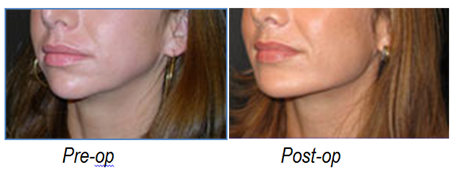 2012-06-13-chinimplants1.png