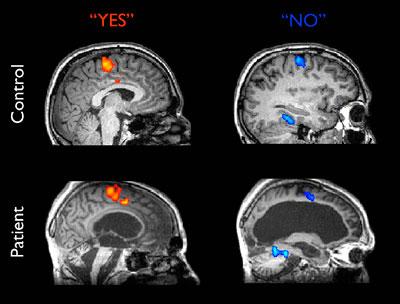 2012-08-01-brainscanimages.jpg