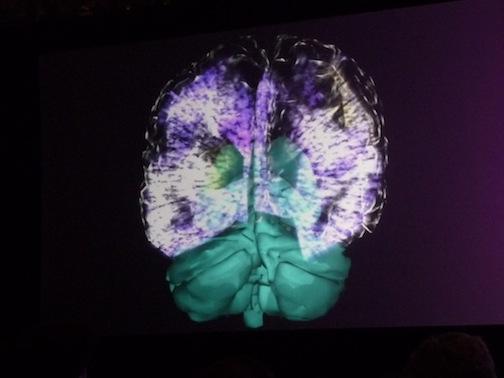 2012-09-24-brain.JPG
