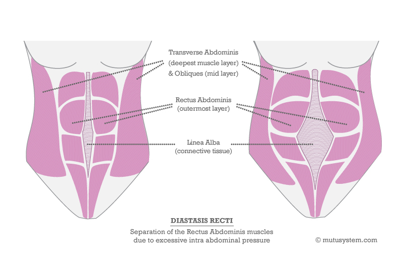 The Hole In Your Post-Baby Tummy. How To Test For and Fix Diastasis
