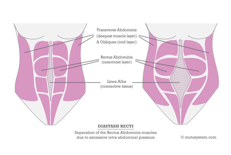 2012-10-17-DiastasisRectiV3.jpg