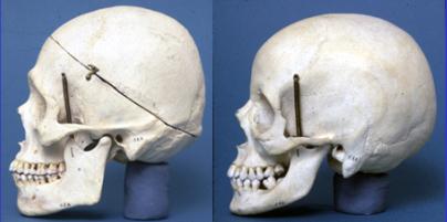 2012-11-06-Skulls2.png