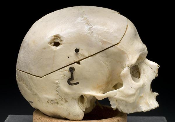 2013-01-30-Gunshot_skull.jpg