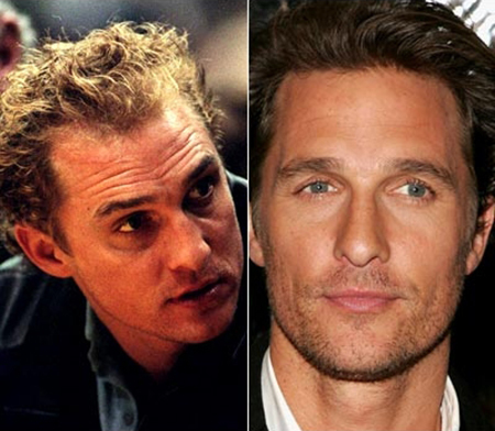 Has Matthew McConaughey had a hair transplant ...