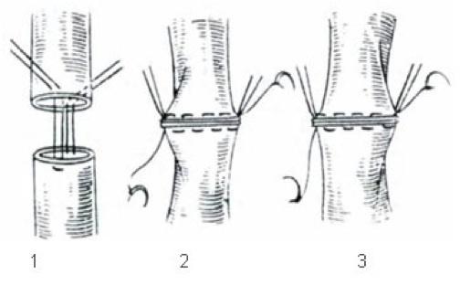 2013-12-17-anastomosis.jpg