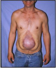 2014-01-02-incisionalhernia.jpg