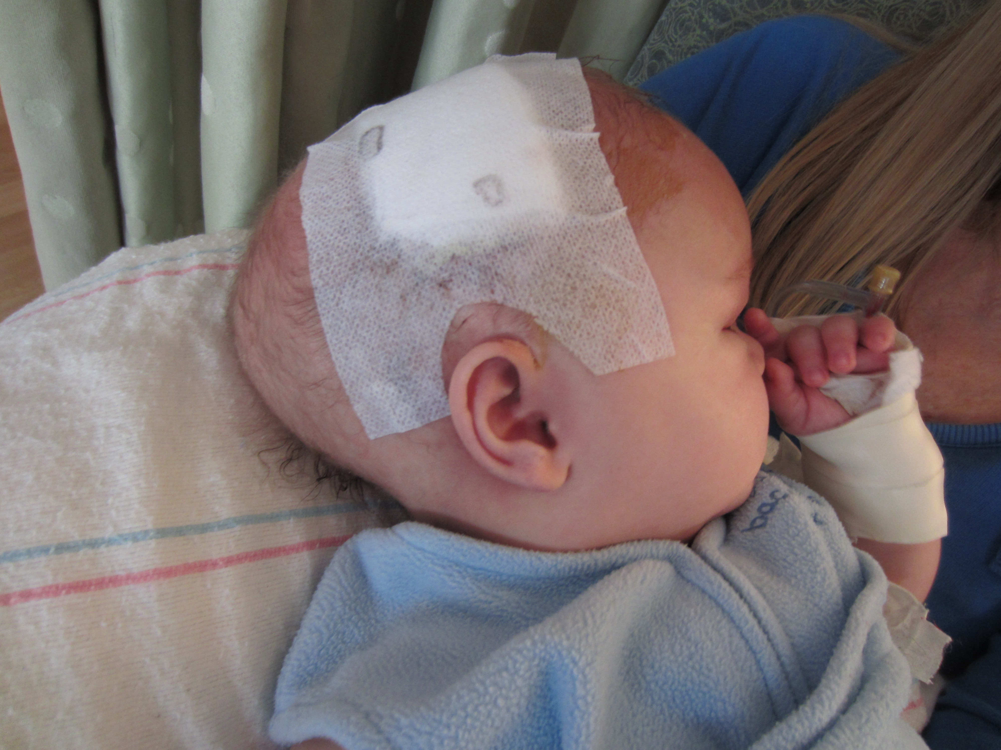 Putting the Pieces Together: Endoscopic Vs. Traditional Treatment of Craniosynostoses | Surgical Outcomes Center for Kids (SOCKs)