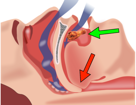 2014-03-04-Snoring_Chickenwing.png