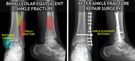 When to Fix a Broken Ankle | HuffPost Life
