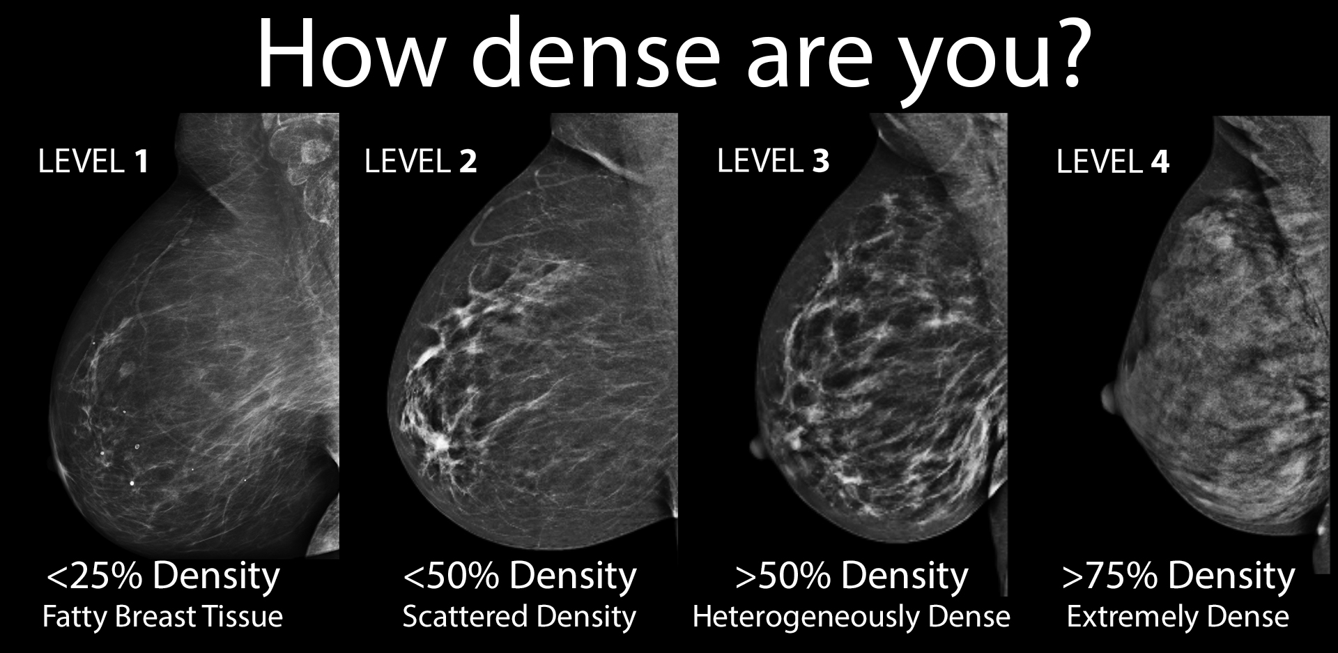 Breast Density How To See Clearly Through The Fog Huffpost Life