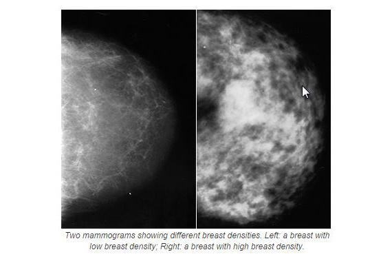 2014-10-03-HuffpostBreastDensity_BreastCancerCampaign.jpg