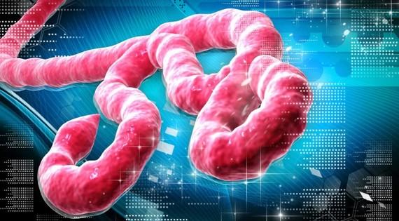 2014-10-08-EbolaVirus.jpg
