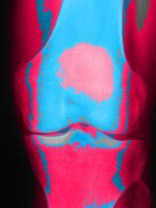 2014-10-24-knee.jpg