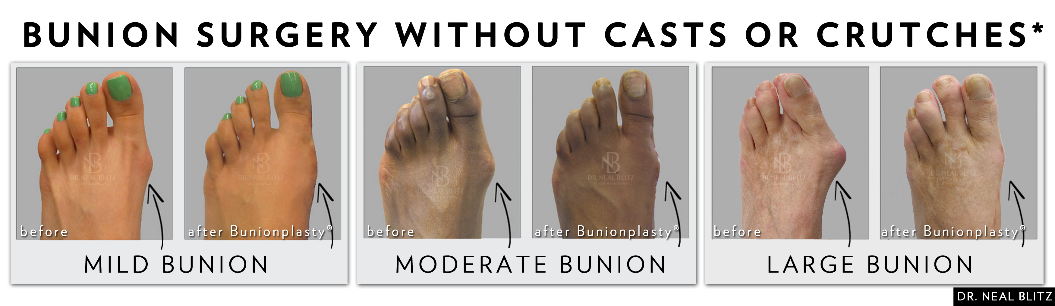 Walking After Bunion Surgery: Is It Possible? | HuffPost Life