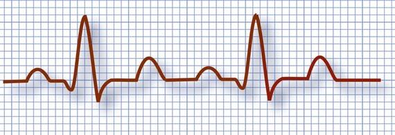 2014-11-26-EKG.jpg