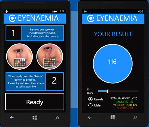 2014-11-29-Eyenaemia.png