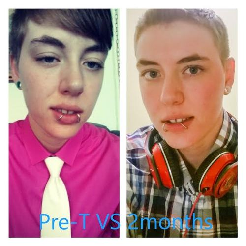 Testosterone before and after transsexual surgery