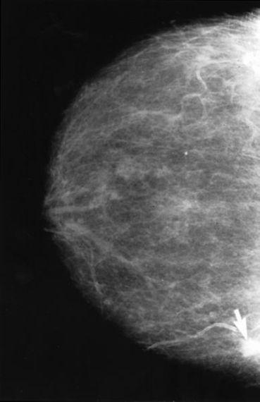 2015-02-23-Mammogram2.jpg