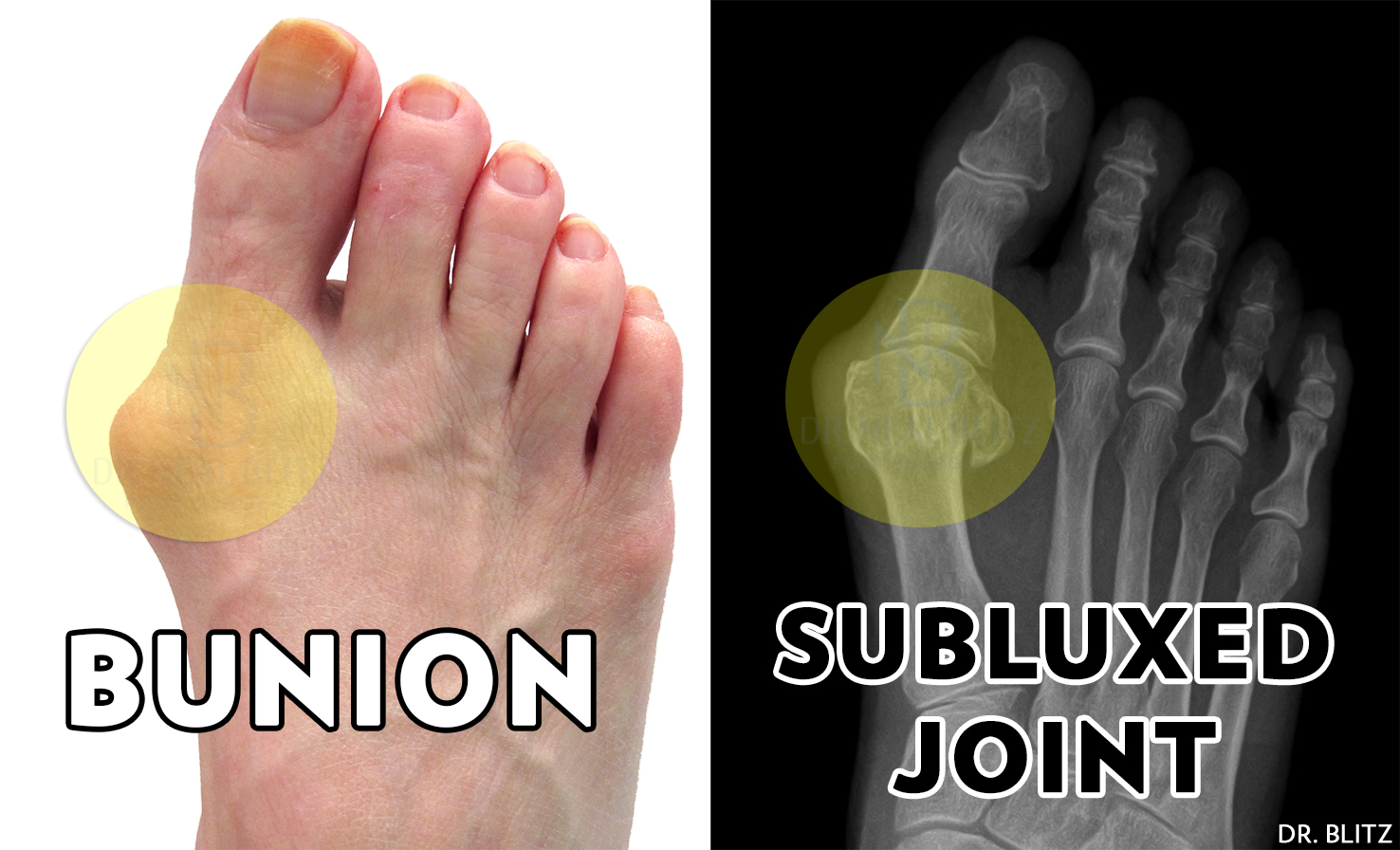 41d069f626b 10 Most Common Bunion Surgery Questions | HuffPost Life
