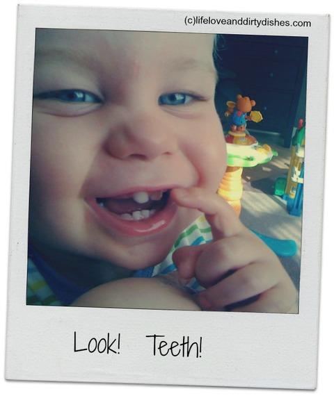 2015-02-28-Teeth.jpg