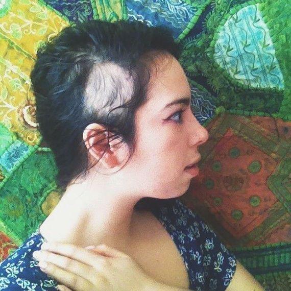 2015-03-25-1427308072-8218461-alopecia.jpg