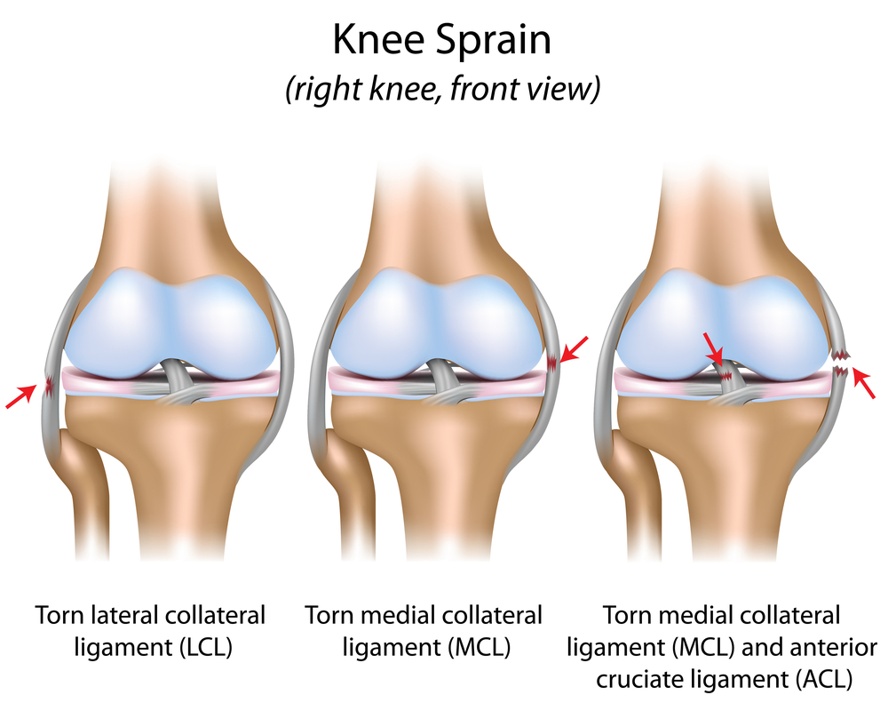 Knee Injury Take Care Of All Your Knee Ligaments Huffpost Life