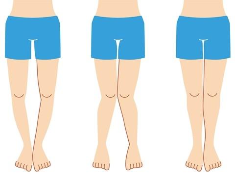 左からO脚、X脚、理想的な脚の形。