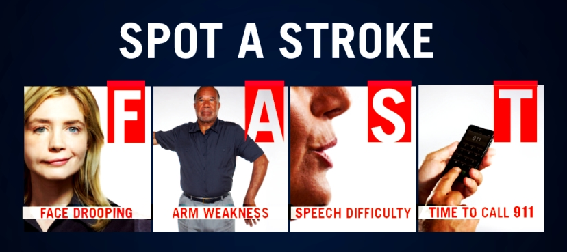 Kết quả hình ảnh cho spot a stroke fast