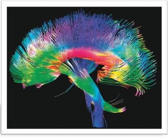 2015-06-10-1433967024-5403955-brain_dt.jpg