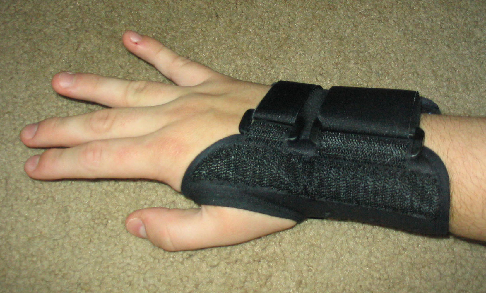 2015-09-05-1441490094-5093626-Carpal_tunnel_splint.jpg