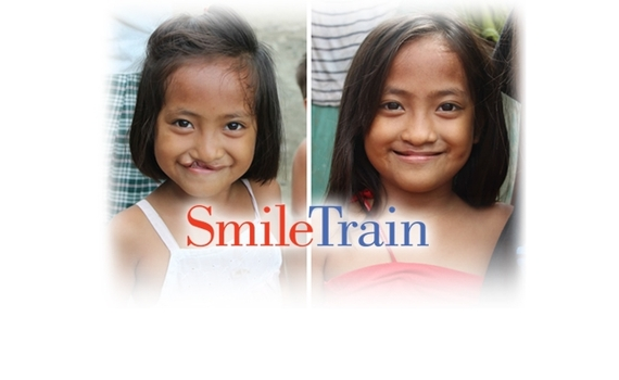 2015-11-22-1448211555-8358844-smile_train_dl.JPG