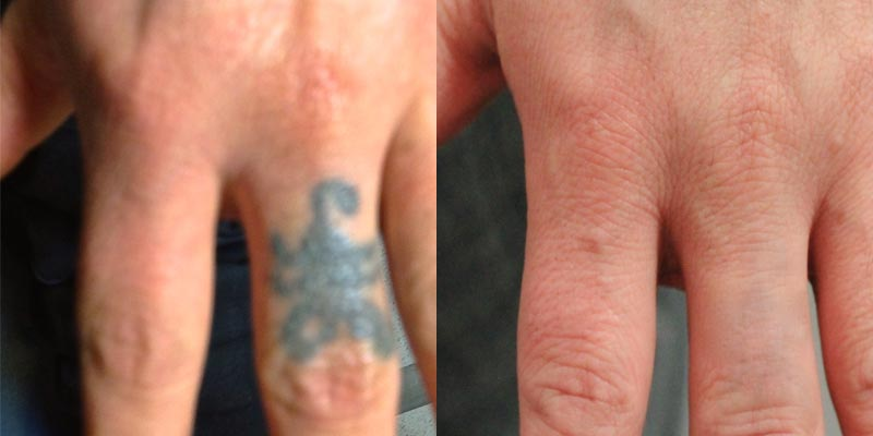 The art of tattoo removal tataway and vincent castiglia for Post laser tattoo removal