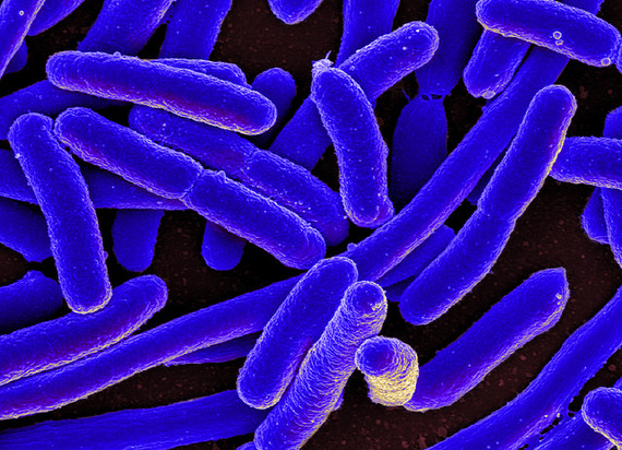 2015-11-24-1448343708-5731966-bacteria.jpg